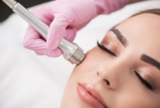 How Dermaroller treatment can help treat skin conditions - Skin Solutions Blog